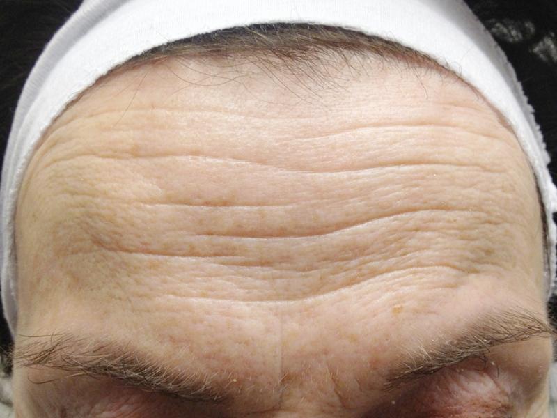 belo forehead web-pre.jpg
