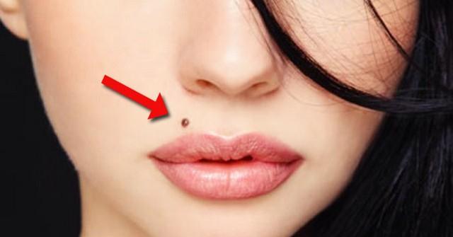 Moles-in-upper-lip.jpg