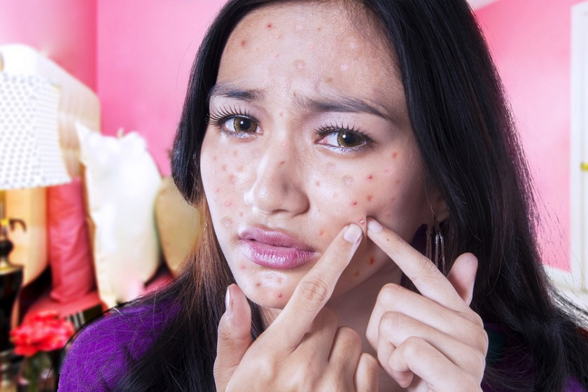 bigstock-Teenage-Girl-Touching-Acne-On-85832993-840x560.jpg