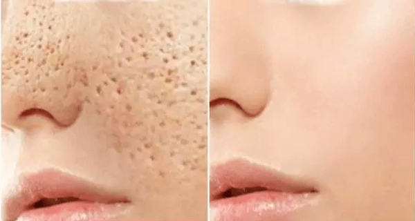 3-days-and-all-open-pores-will-disappear-from-your-skin-forever.webp_.png