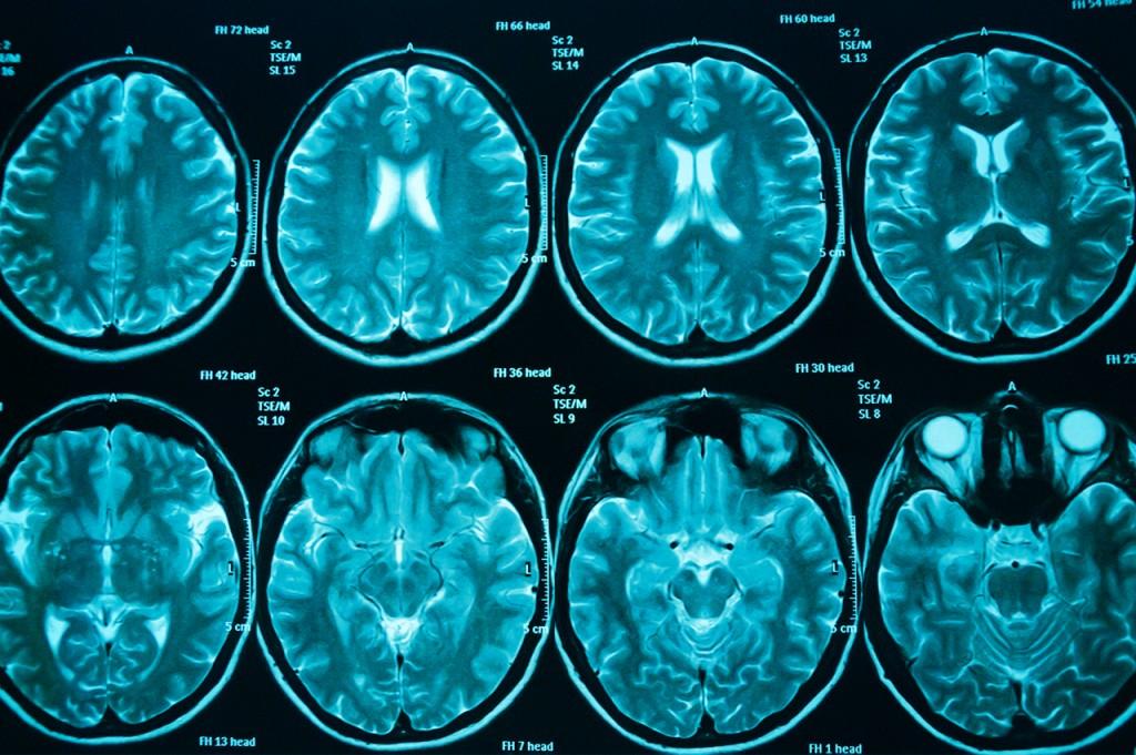 Brain-scans-OC-blue.jpg