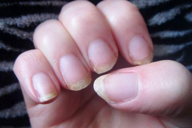 brittle nails.jpg