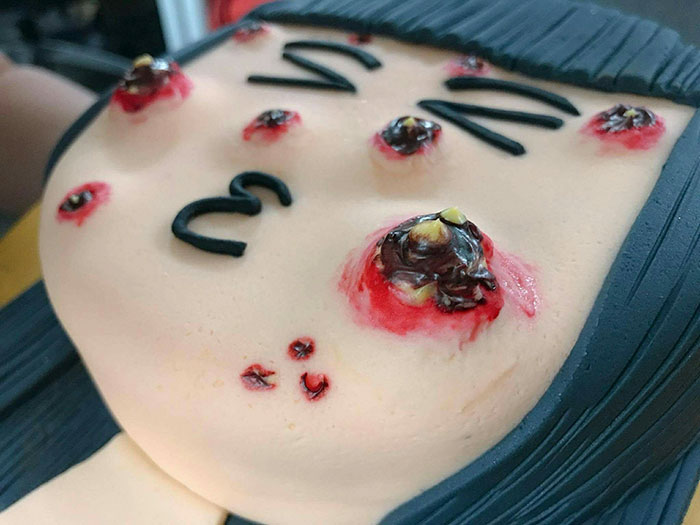 pimple-popping-cake-cakescape-4-59ddca66e153a__700.jpg