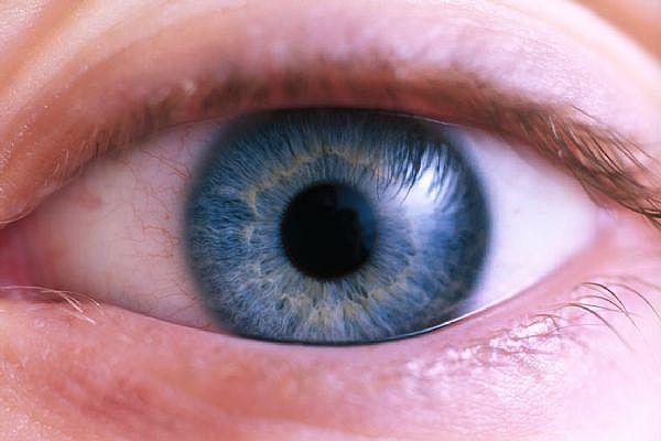 Dry-Eyes-1.jpg