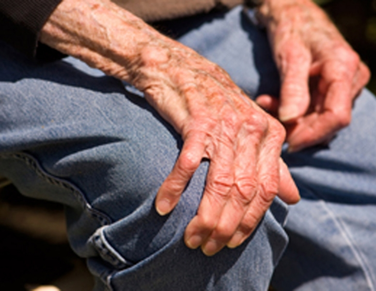 Osteoarthritis-Patients.jpg