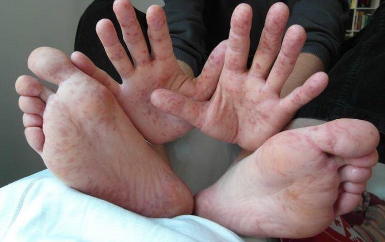 Spotted-Feet-e1479927980611.jpg