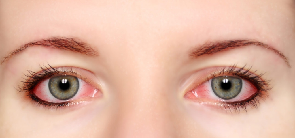 21-Effective-Home-Remedies-For-Red-Eyes.jpg