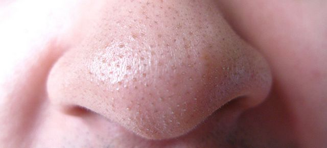 blackheads-nose.jpg